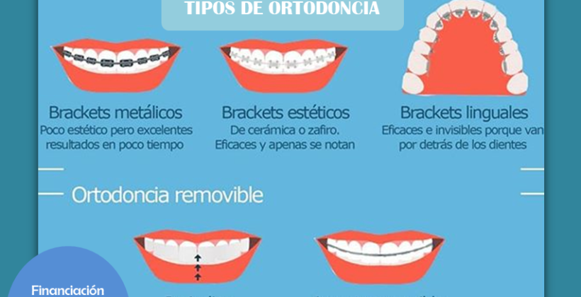 (Español) ¿QUE TIPO DE ORTODONCIA DEBO USAR?