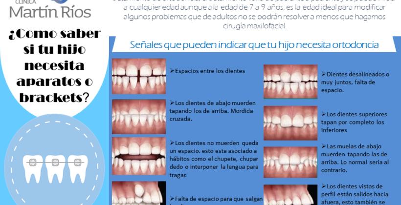 (Español) ¿Cómo va a necesitar aparato si aún tiene dientes de leche?