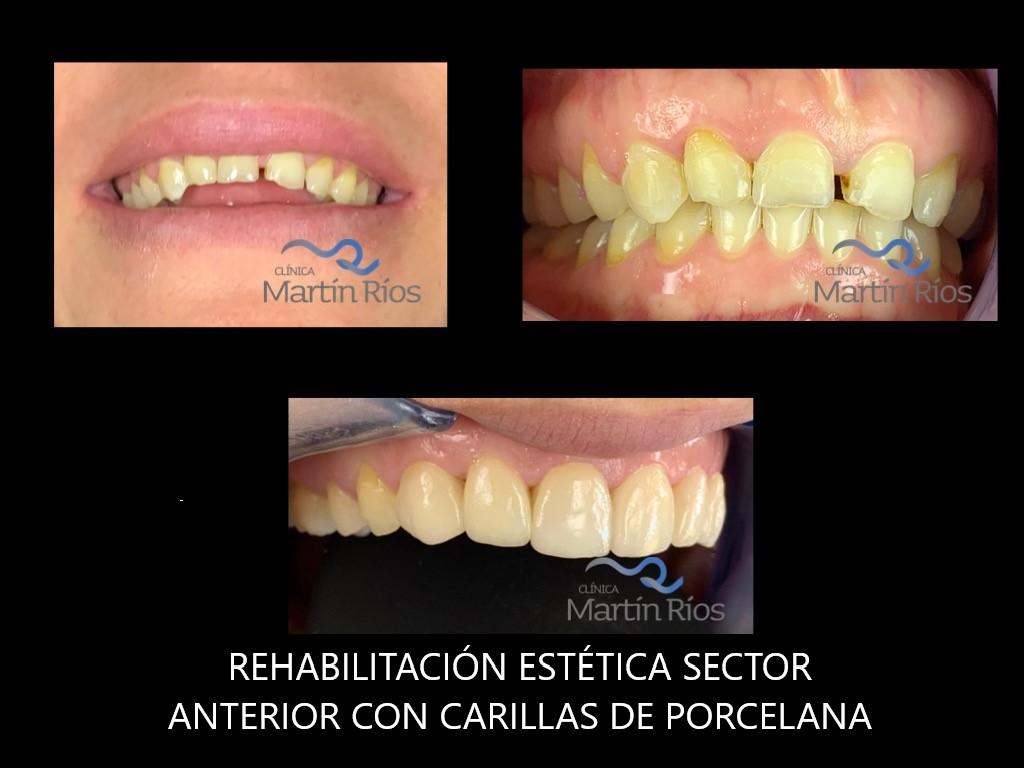REHABILITACIÓN ESTÉTICA DEL SECTOR ANTERIOR CON CARILLAS DE PORCELANA