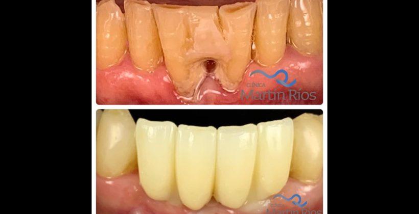 Rehabilitación de dientes antero-inferiores con implantes dentales y puente de zirconio sobre implantes.